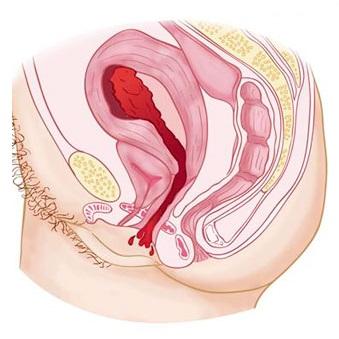 Zavinování dělohy